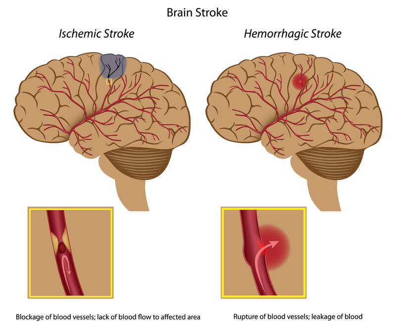 Stroke and The Soda / Soft Drinks Connection